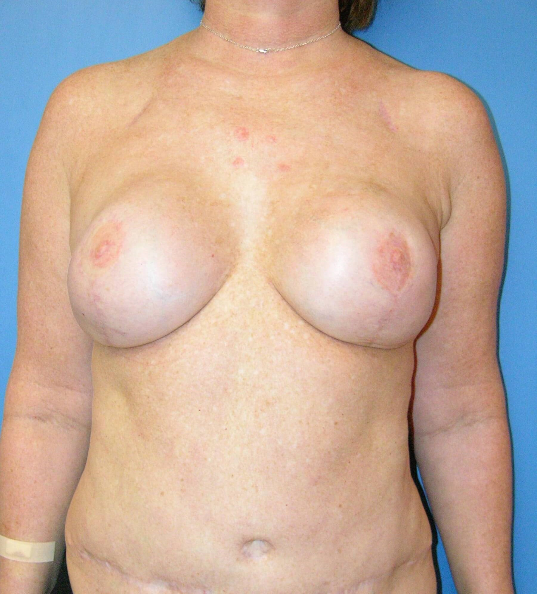 DIEP with Implants After