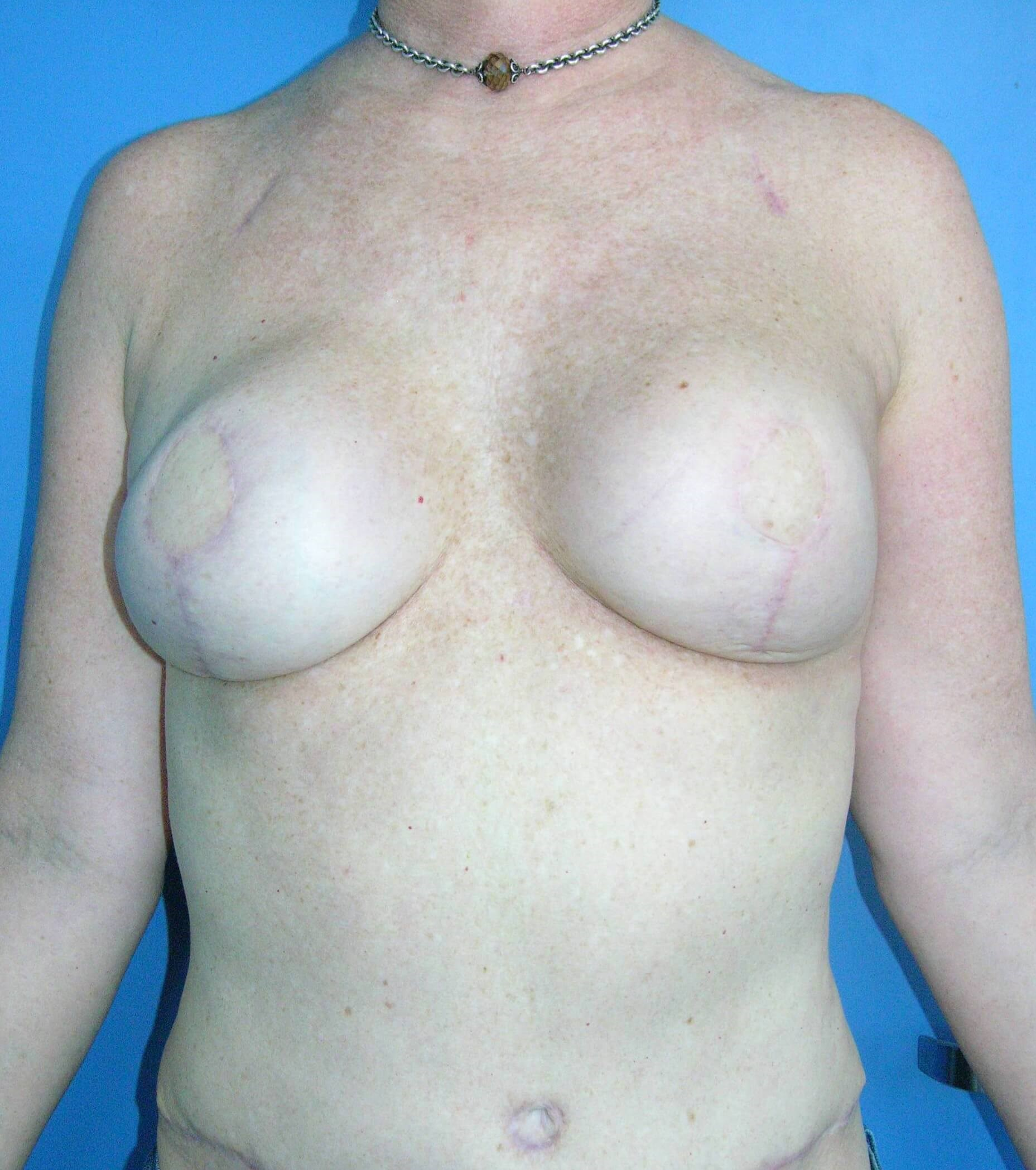 DIEP with Implants Before