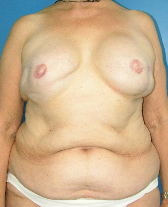 Delayed DIEP After Implants After