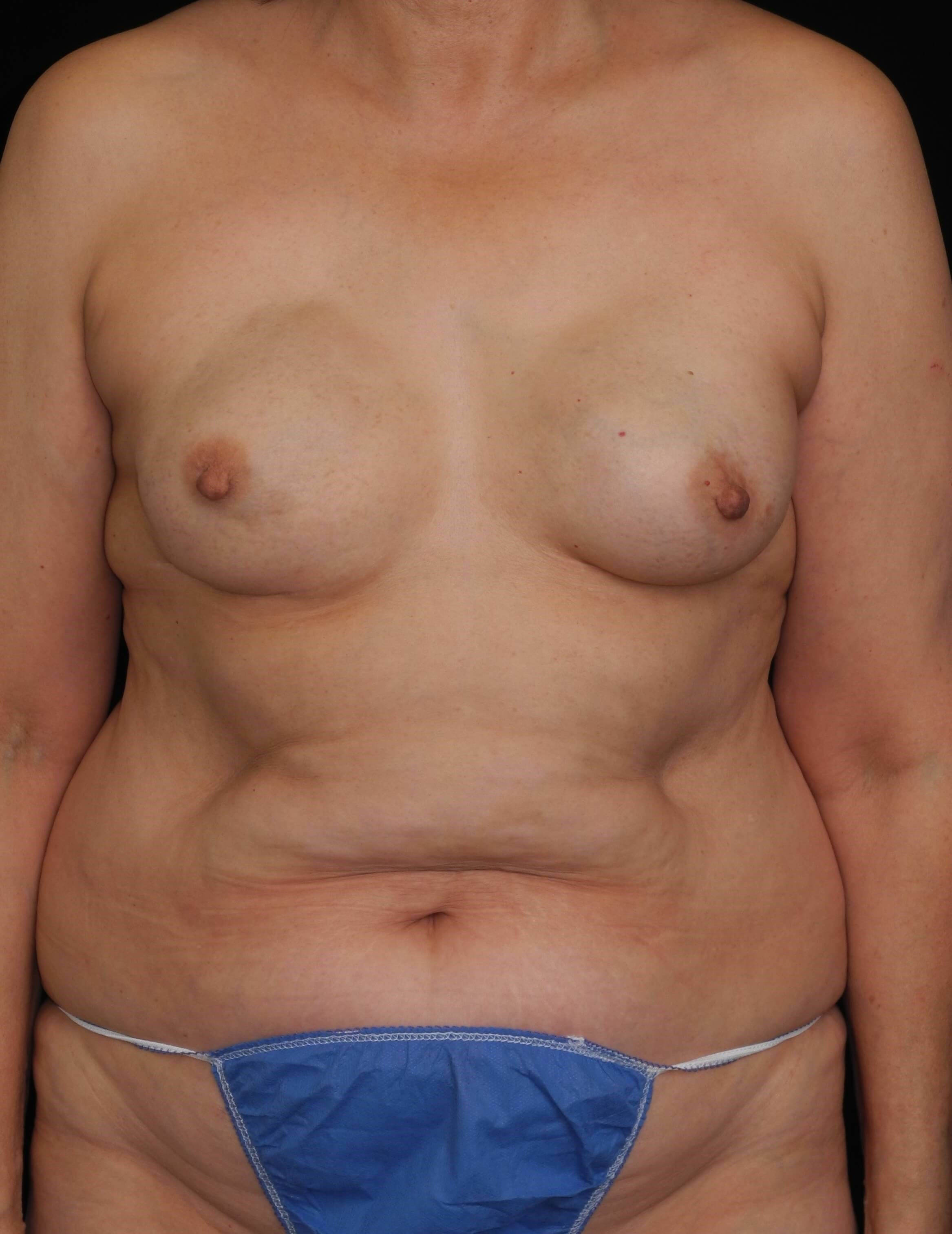Delayed DIEP After Implants Before