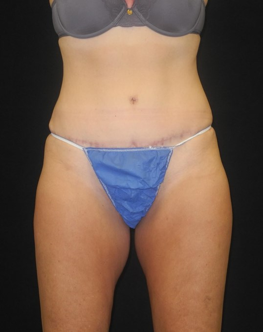 CoolSculpting of Inner Thighs Before