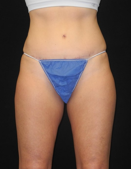 CoolSculpting of Inner Thighs After