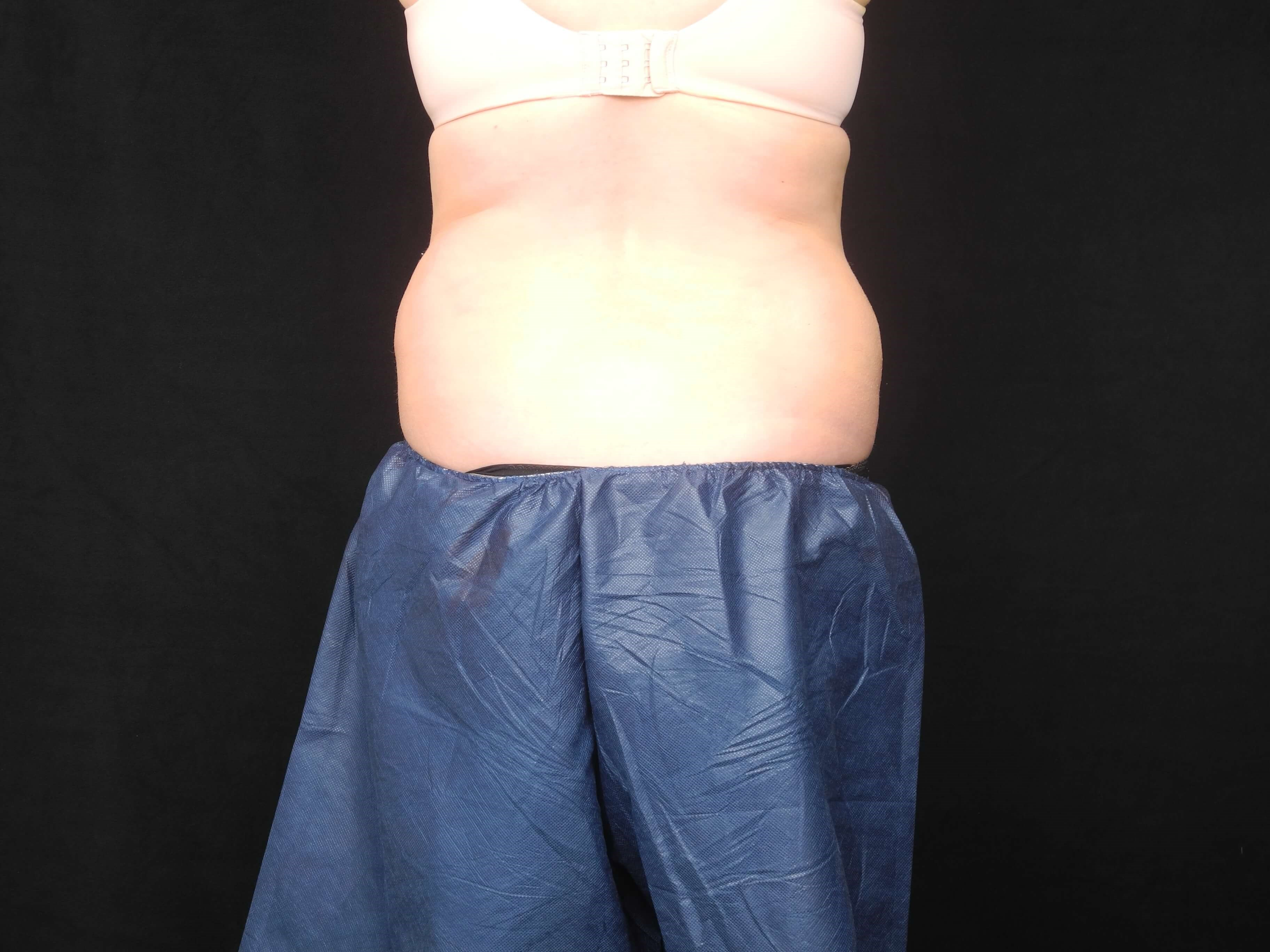 CoolSculpting of Abdomen/Flank Before
