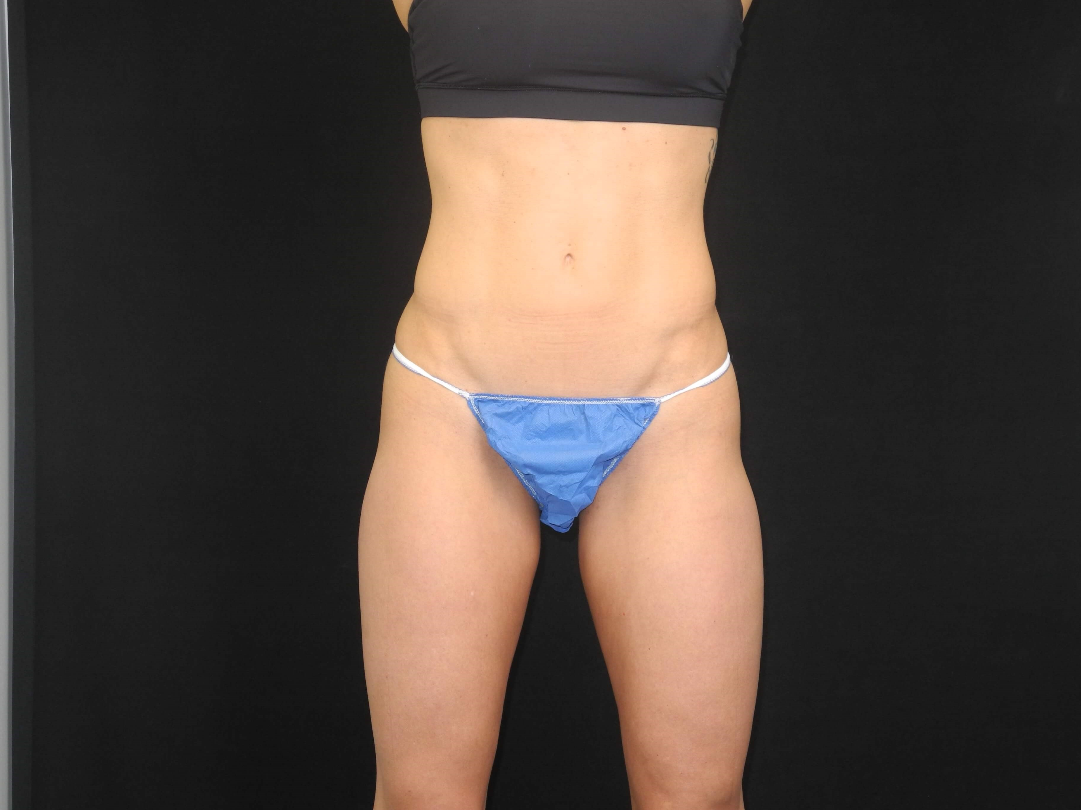 CoolSculpting of thighs After