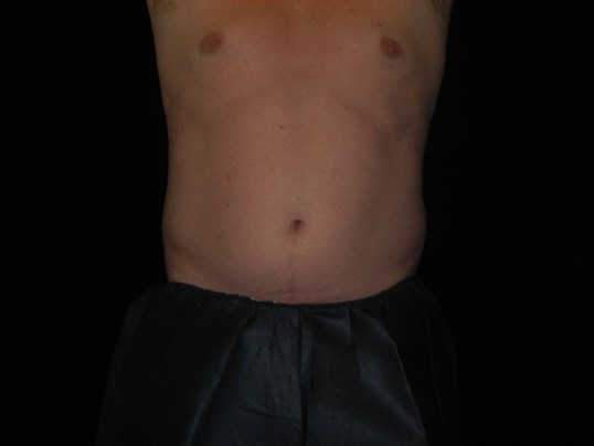 CoolSculpting of Flanks Before