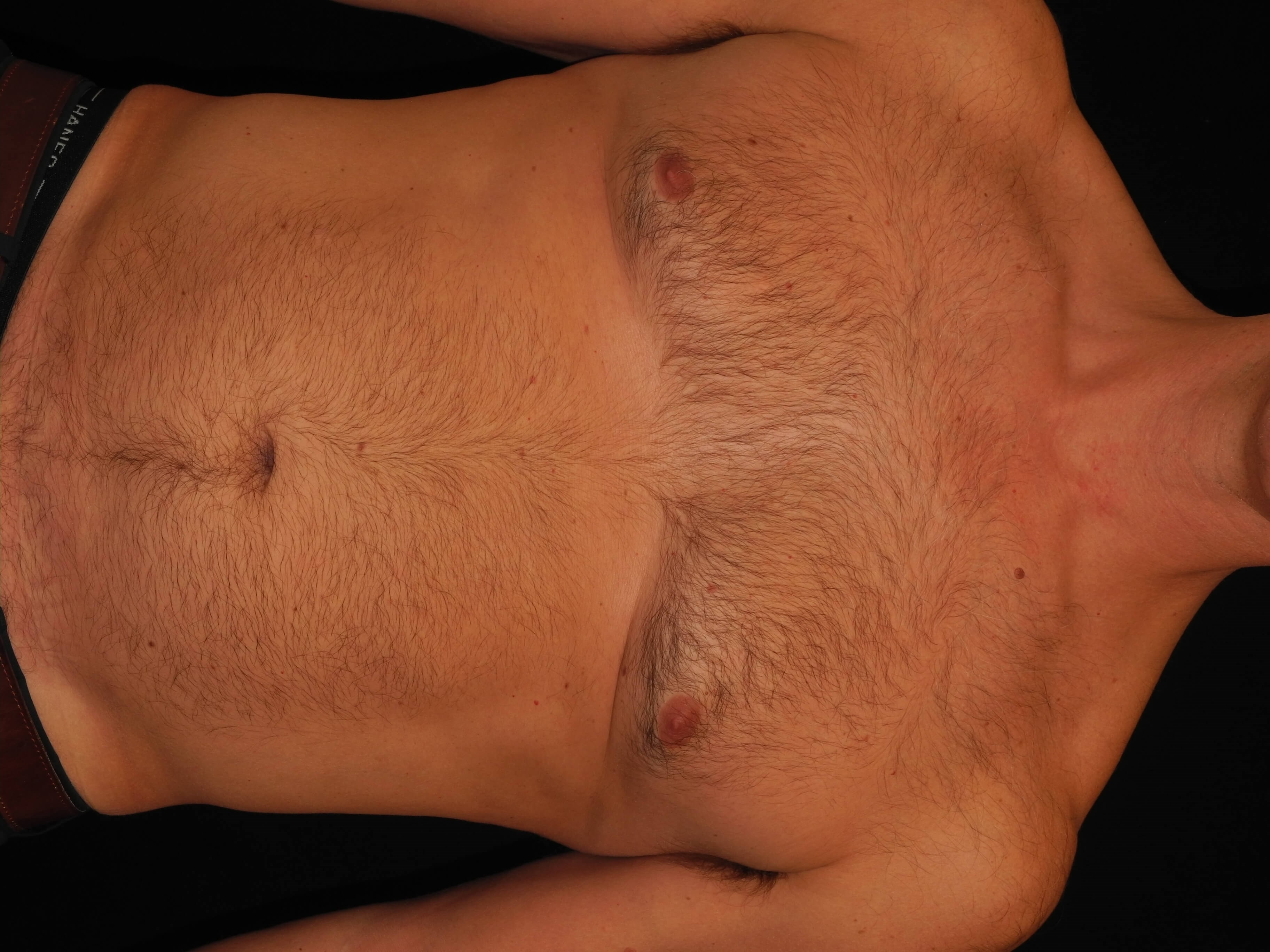 CoolSculpting of the Chest After
