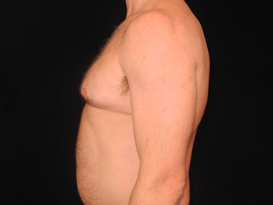 CoolSculpting of the Chest Before