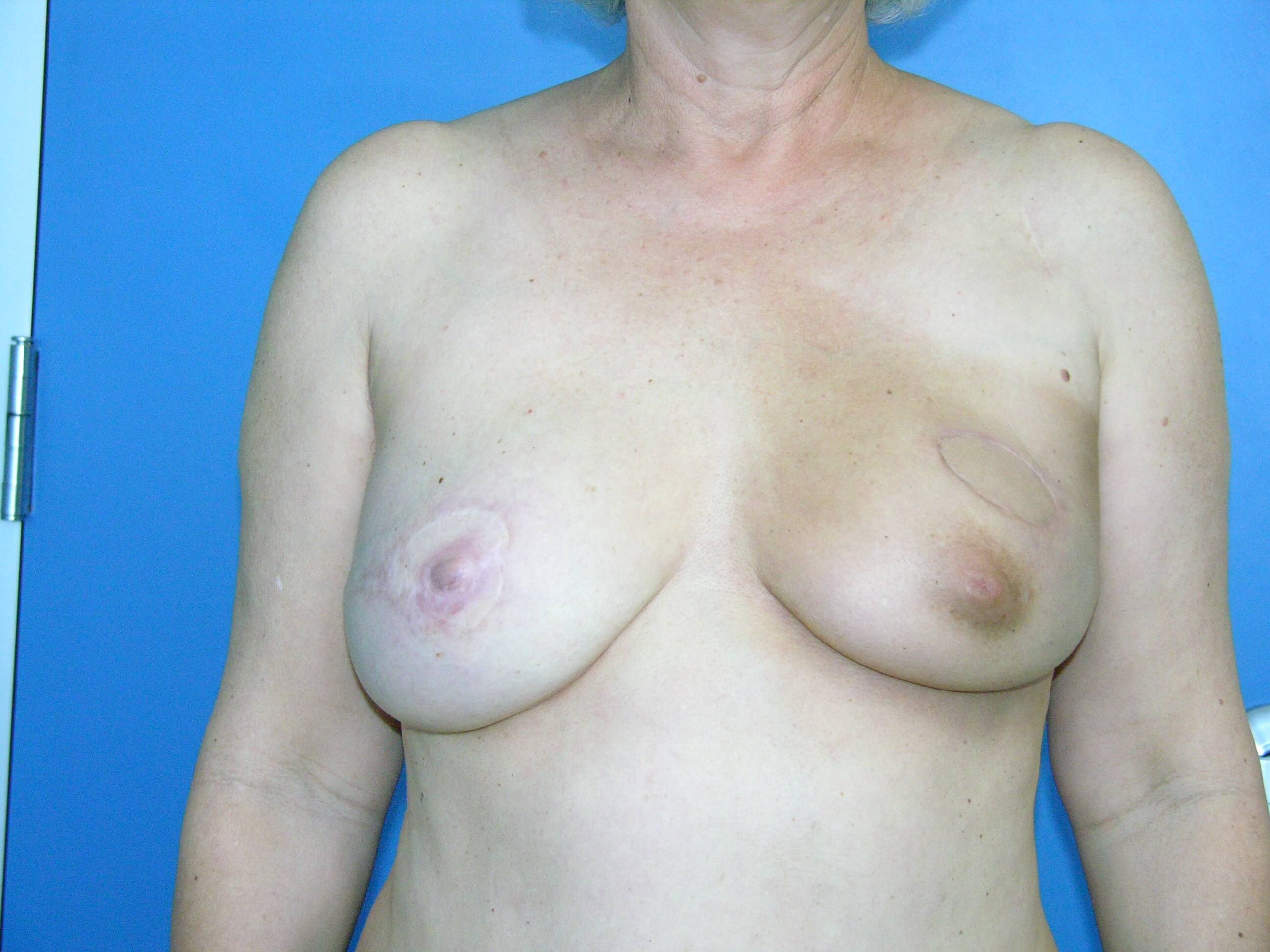 Left PAP flap breast recon After