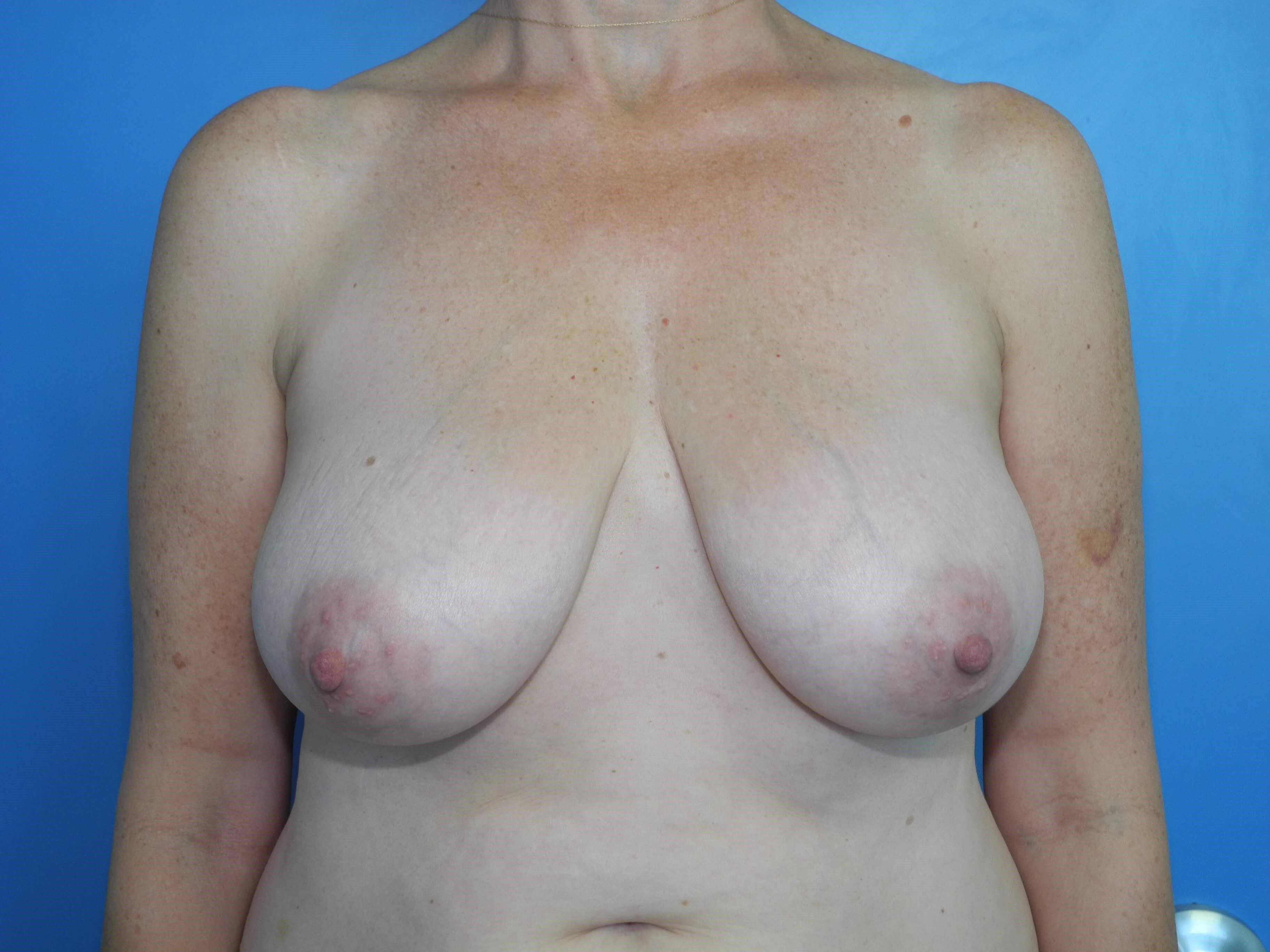 Mastopexy/breast lift Before