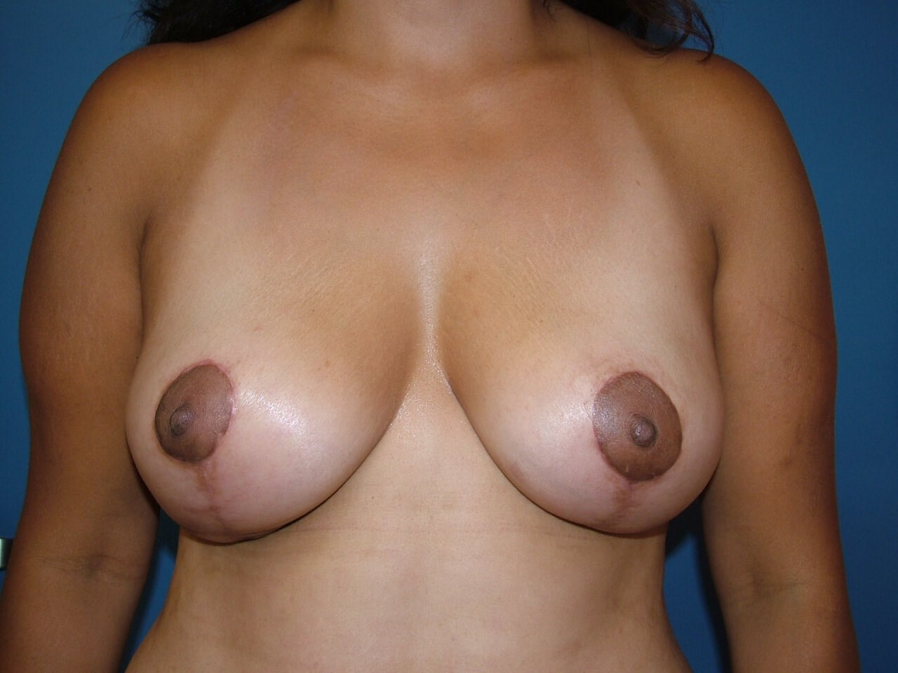 Mastopexy/Breast Lift After