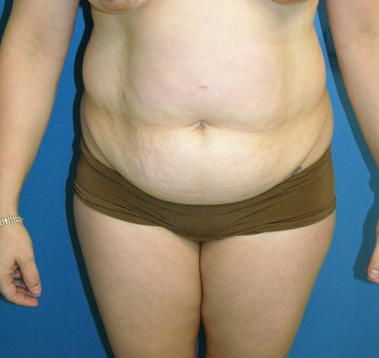 Abdominoplasty/Tummy Tuck Before
