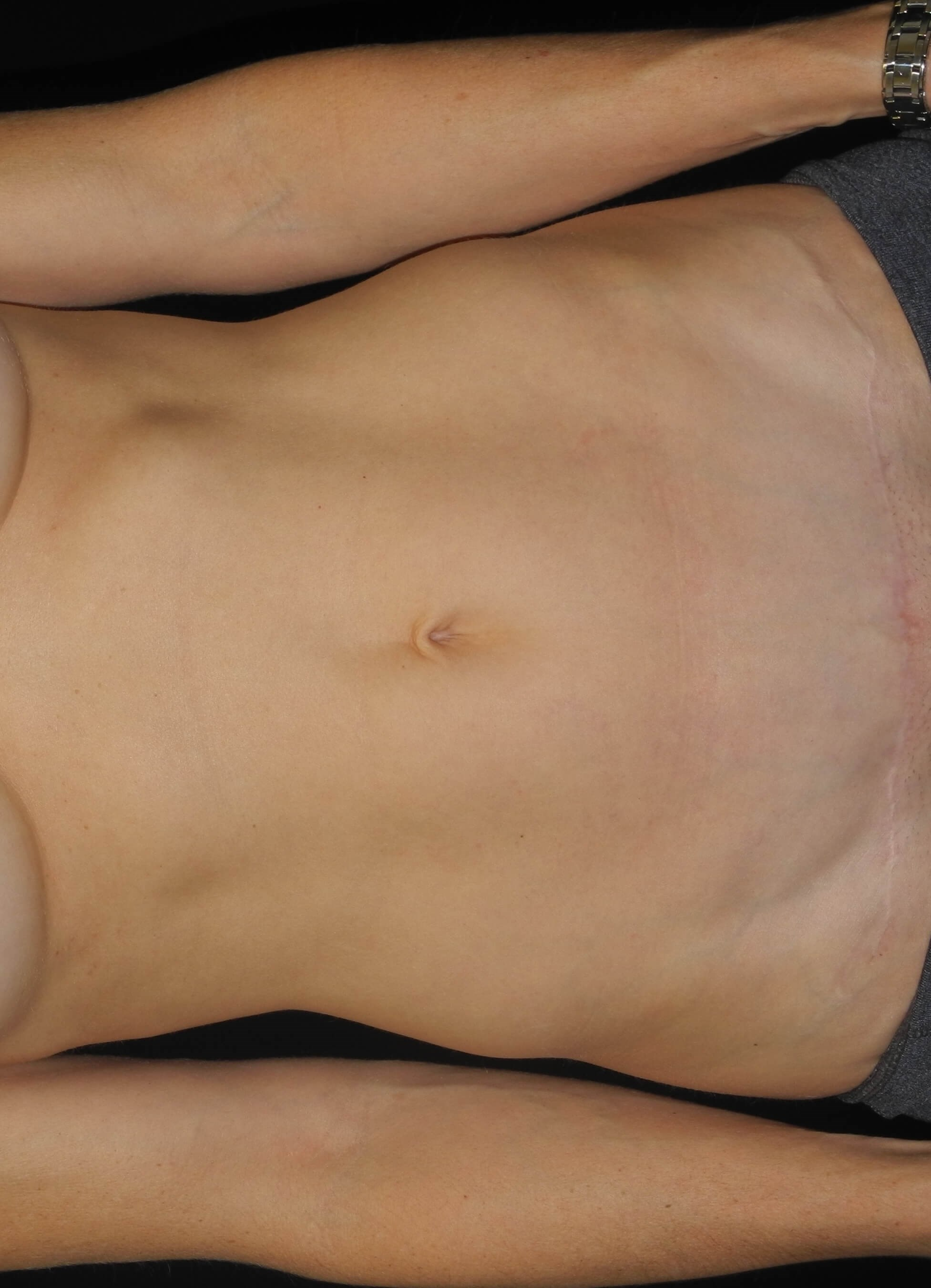Mini-abdominoplasty/Tummy Tuck After