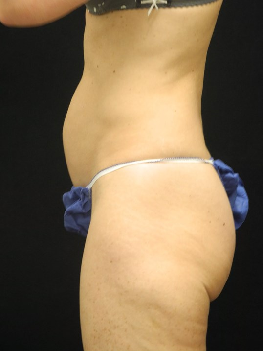 Mini-abdominoplasty/Tummy Tuck Before
