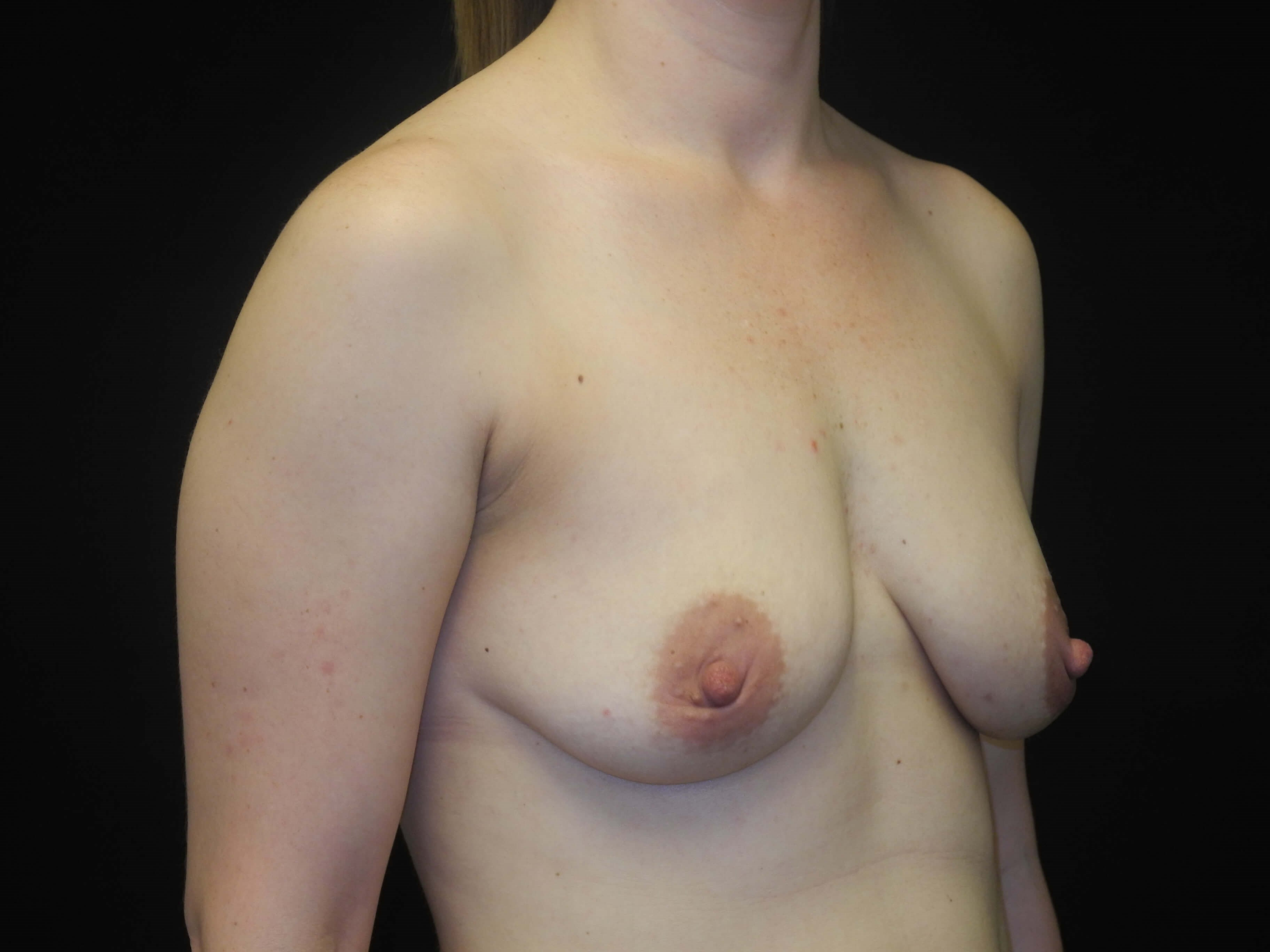 Mastopexy with fat grafting Before