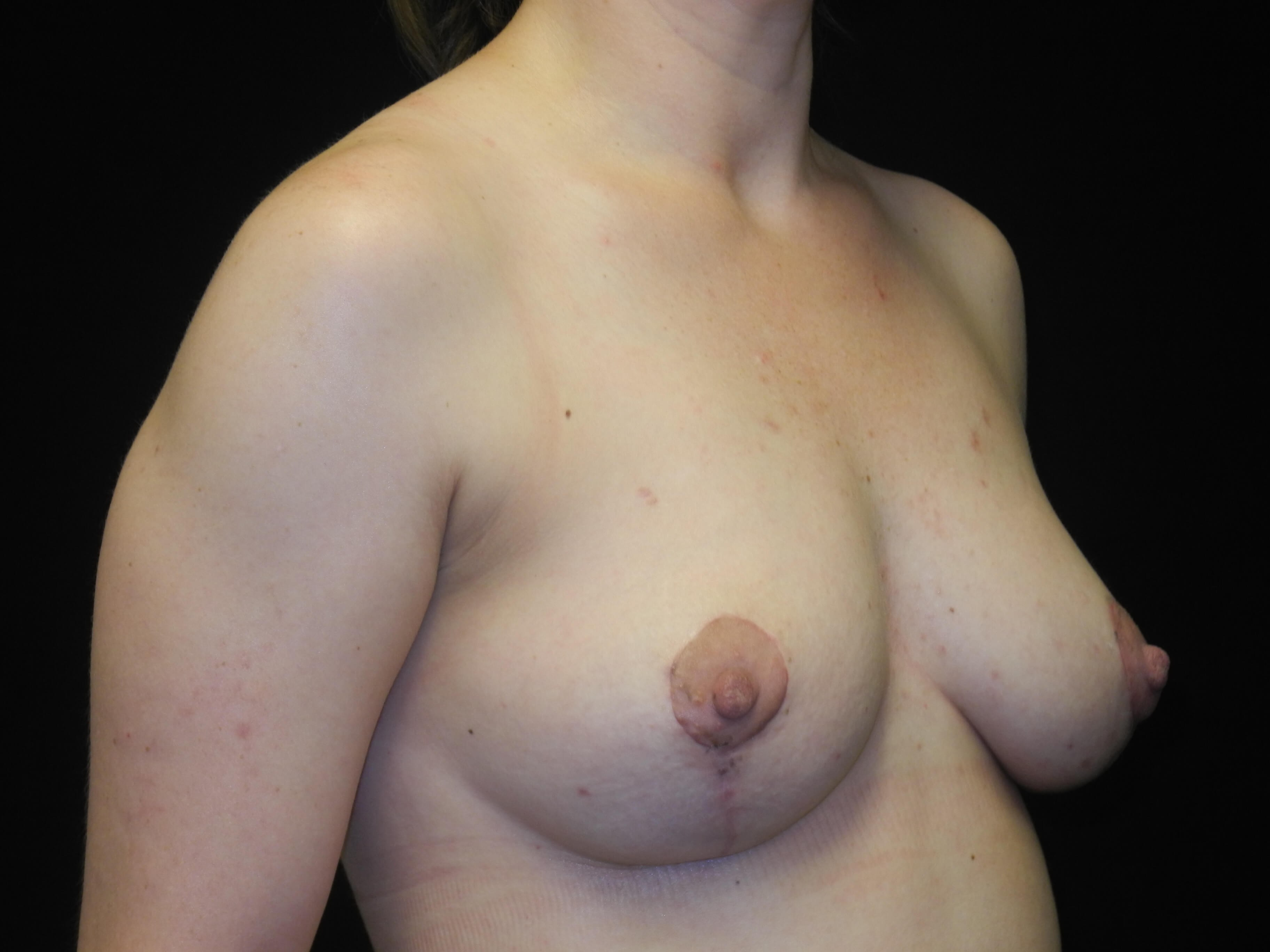 Mastopexy with fat grafting After