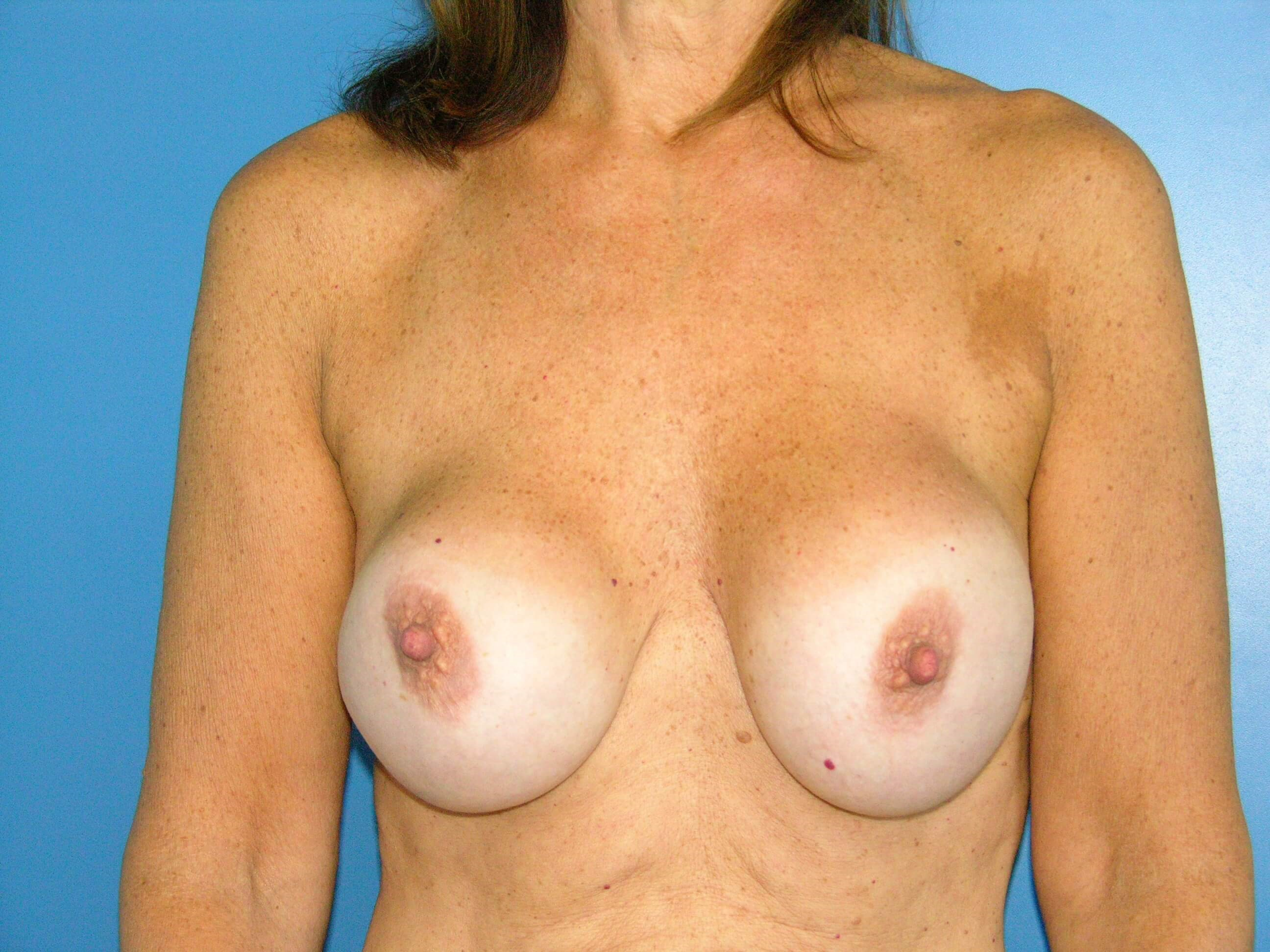 Breast Lift w Implant Exchange Before