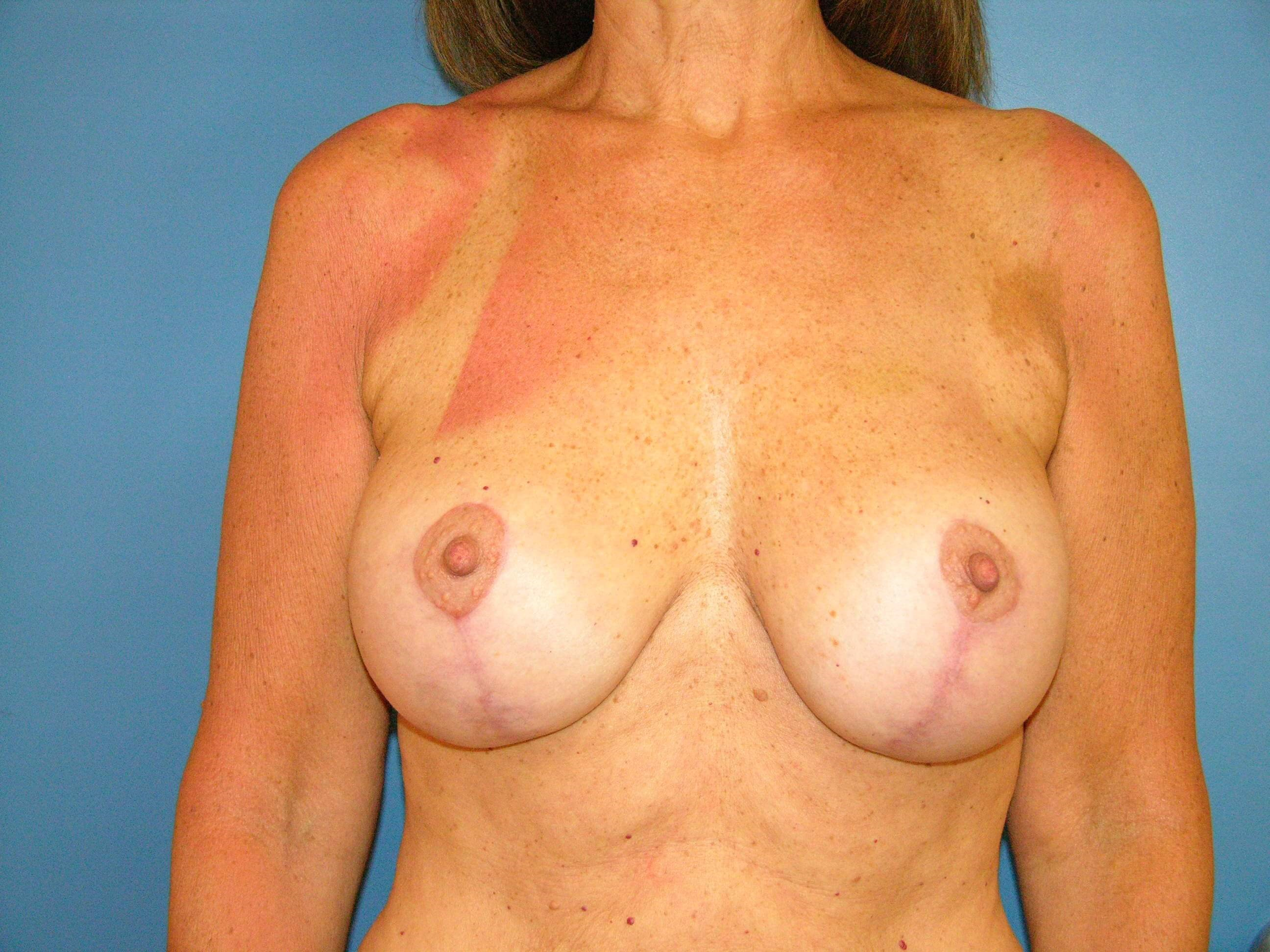 Breast Lift w Implant Exchange After