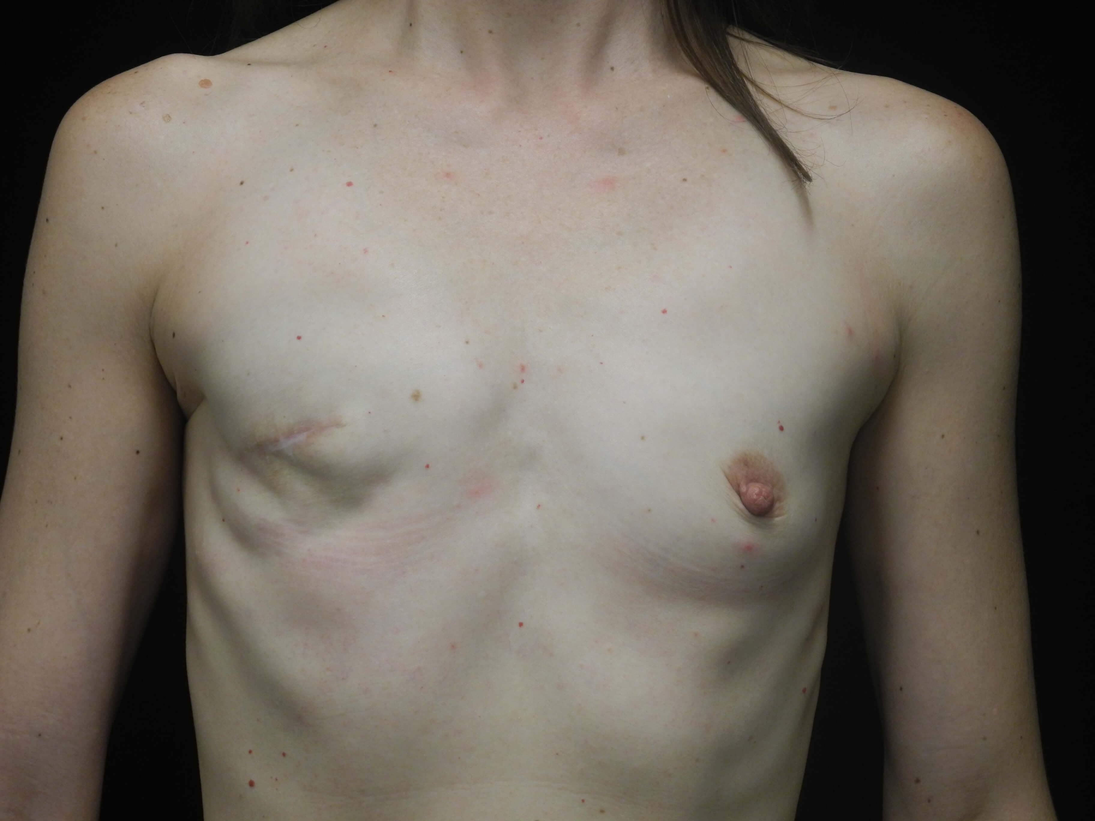 Breast Implant Reconstruction Before