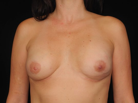 Breast implant reconstruction After