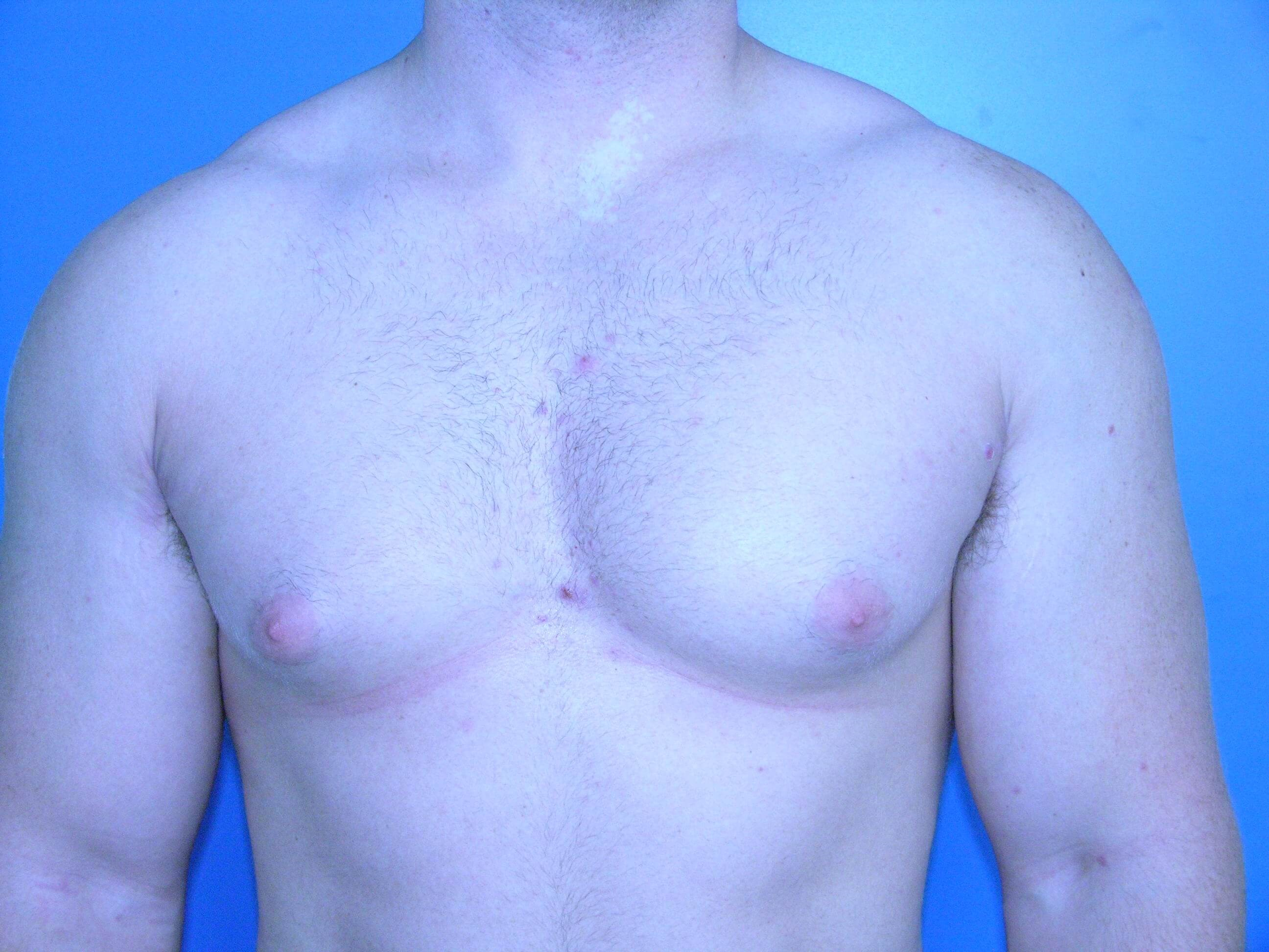 Gynecomastia/Breast Reduction Before
