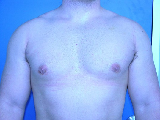 Gynecomastia/Breast Reduction After