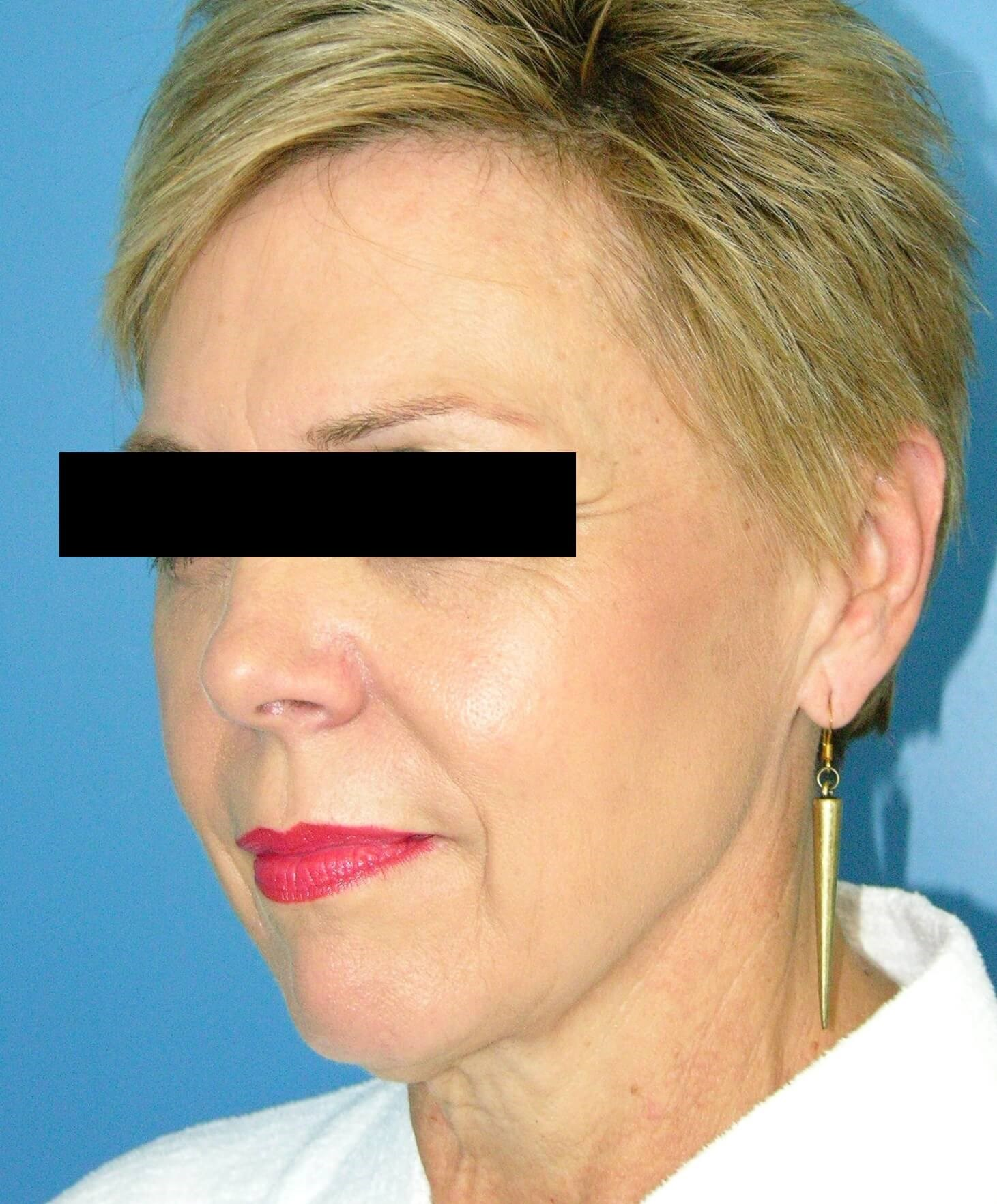 Sculptra Injection Before