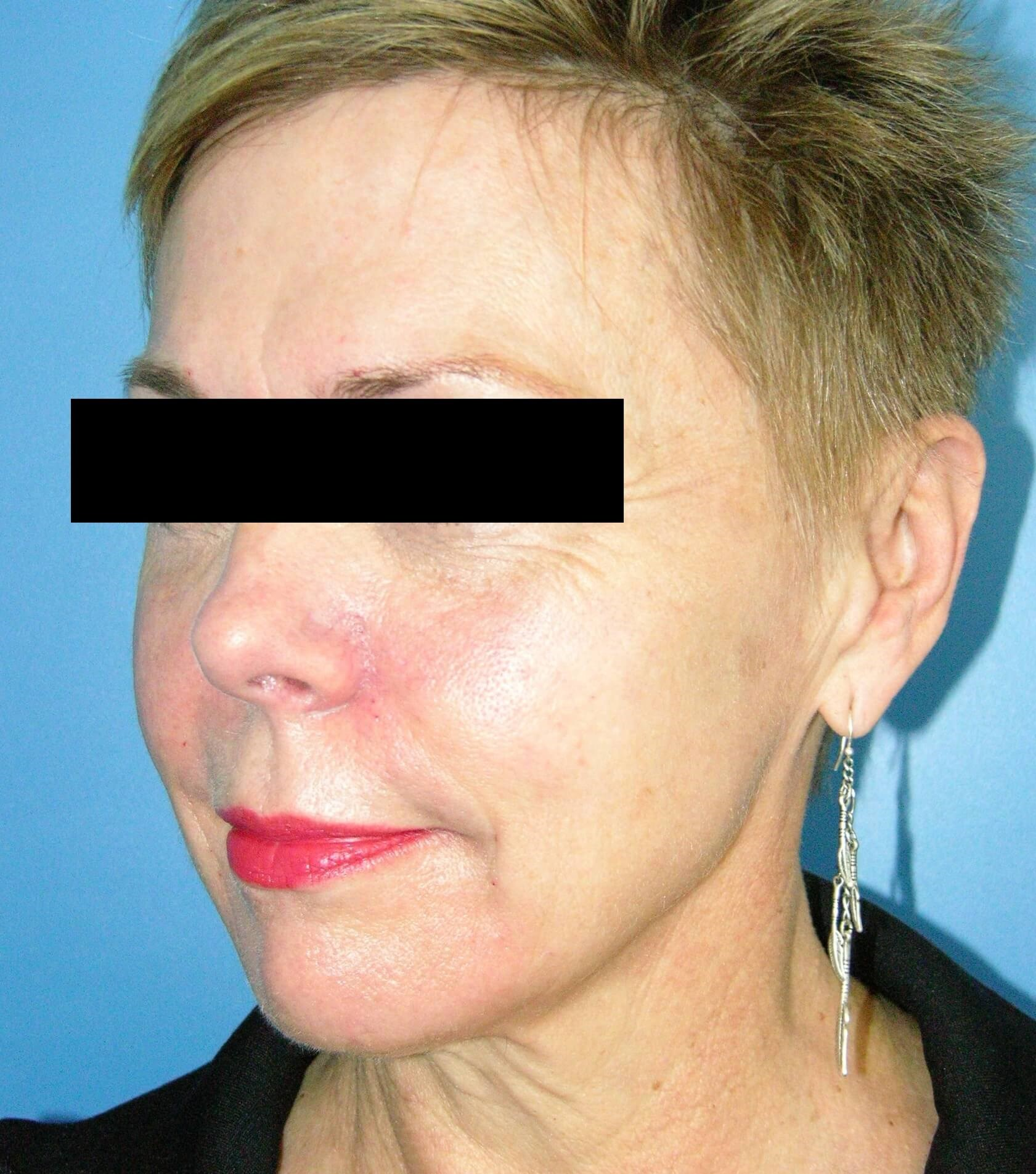 Sculptra Injection After