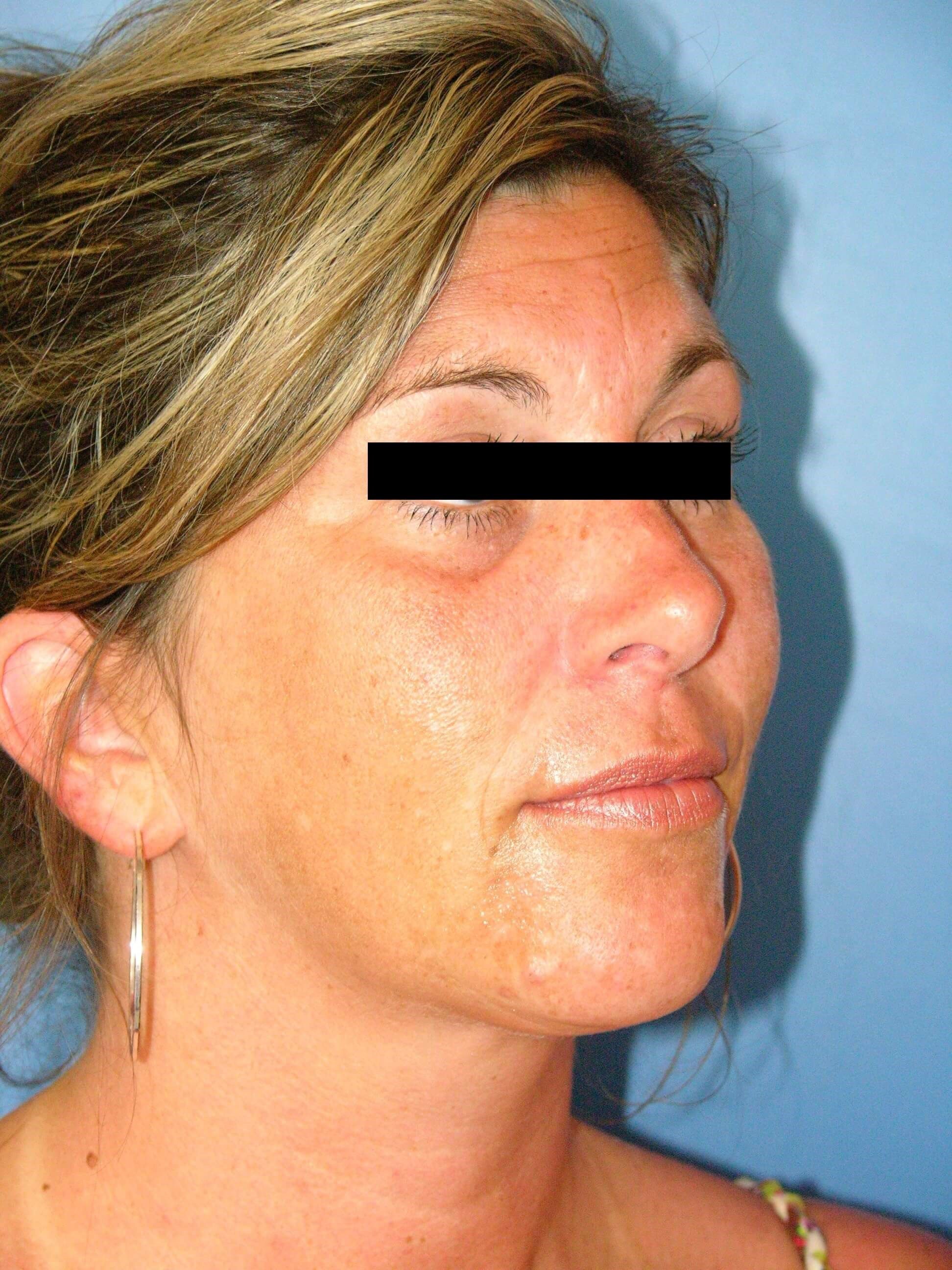 Sculptra/Restylane Injections Before