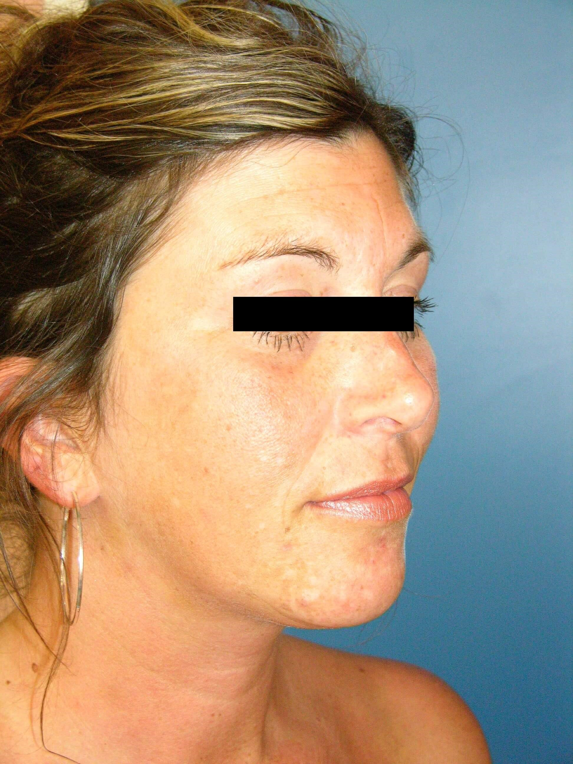 Sculptra/Restylane Injections After