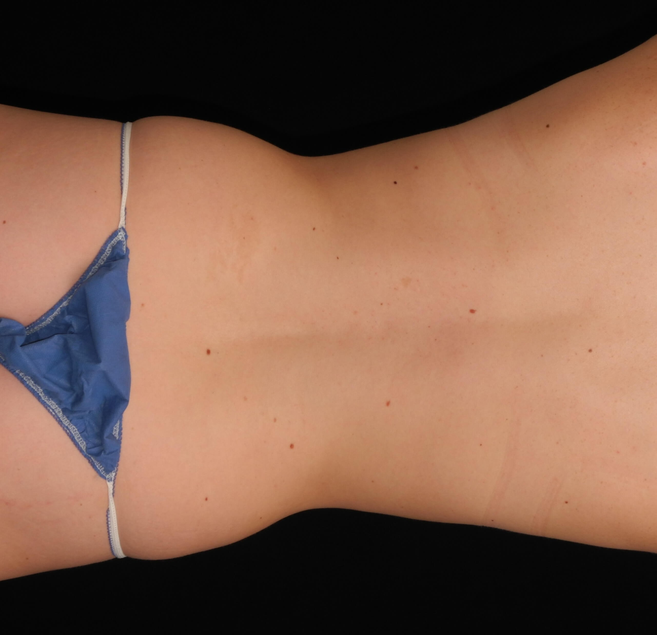 Liposuction of Abdomen, Waist Before