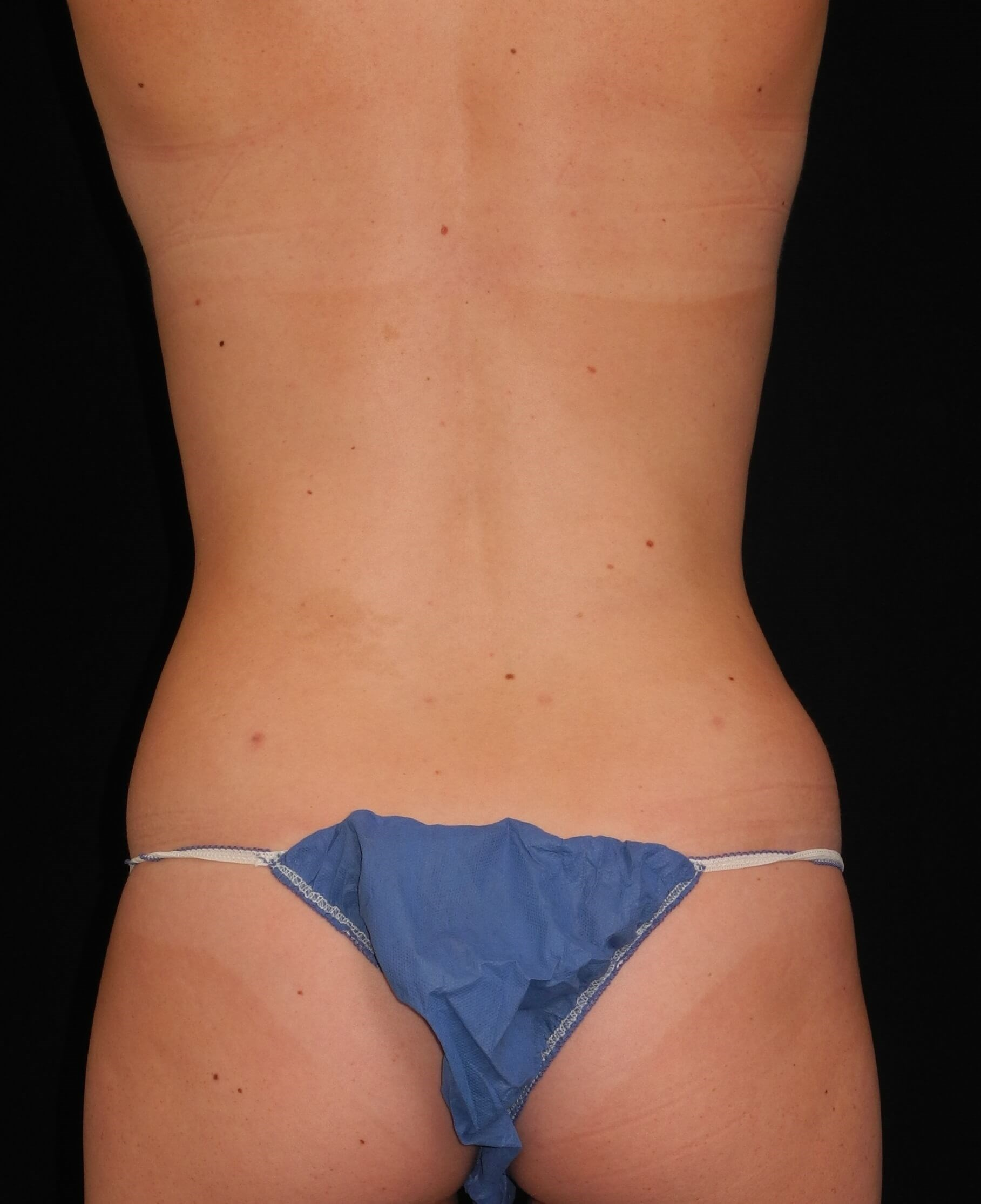 Liposuction of Abdomen, Waist After