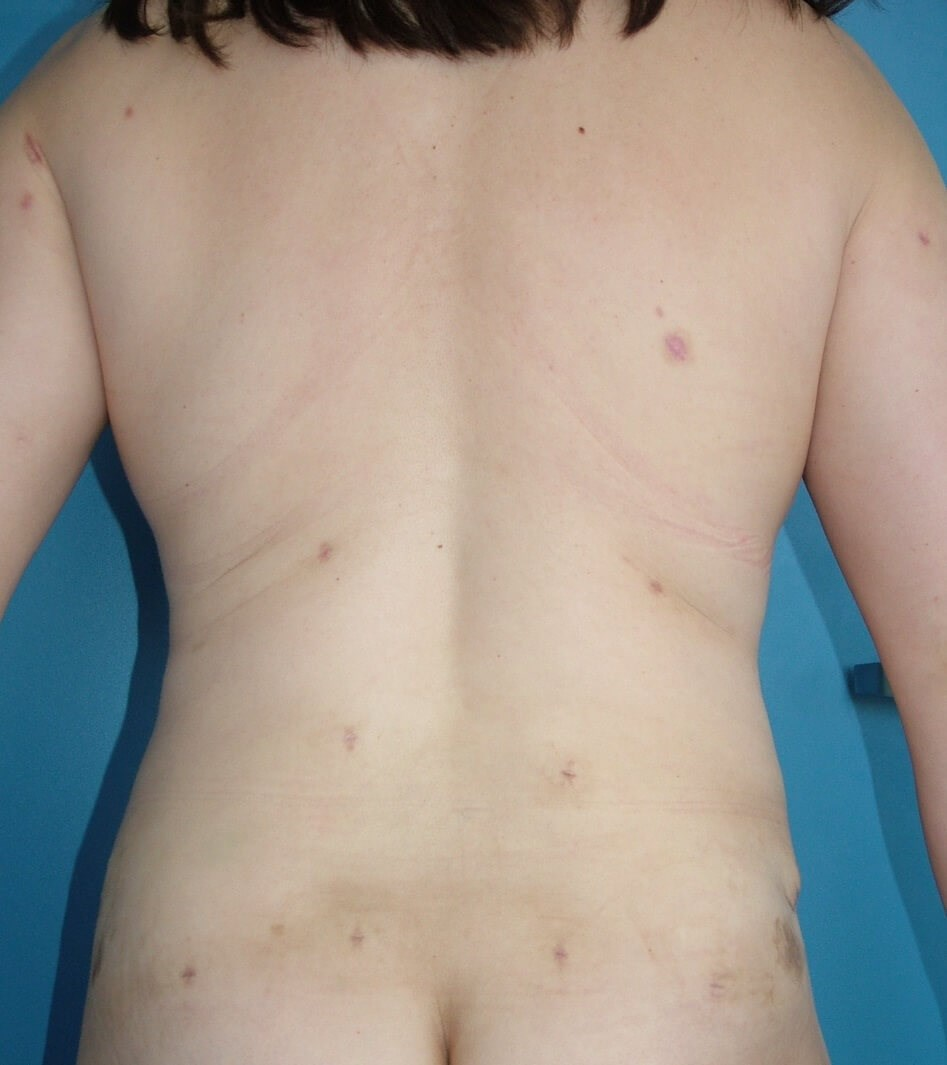 Liposuction of Back After