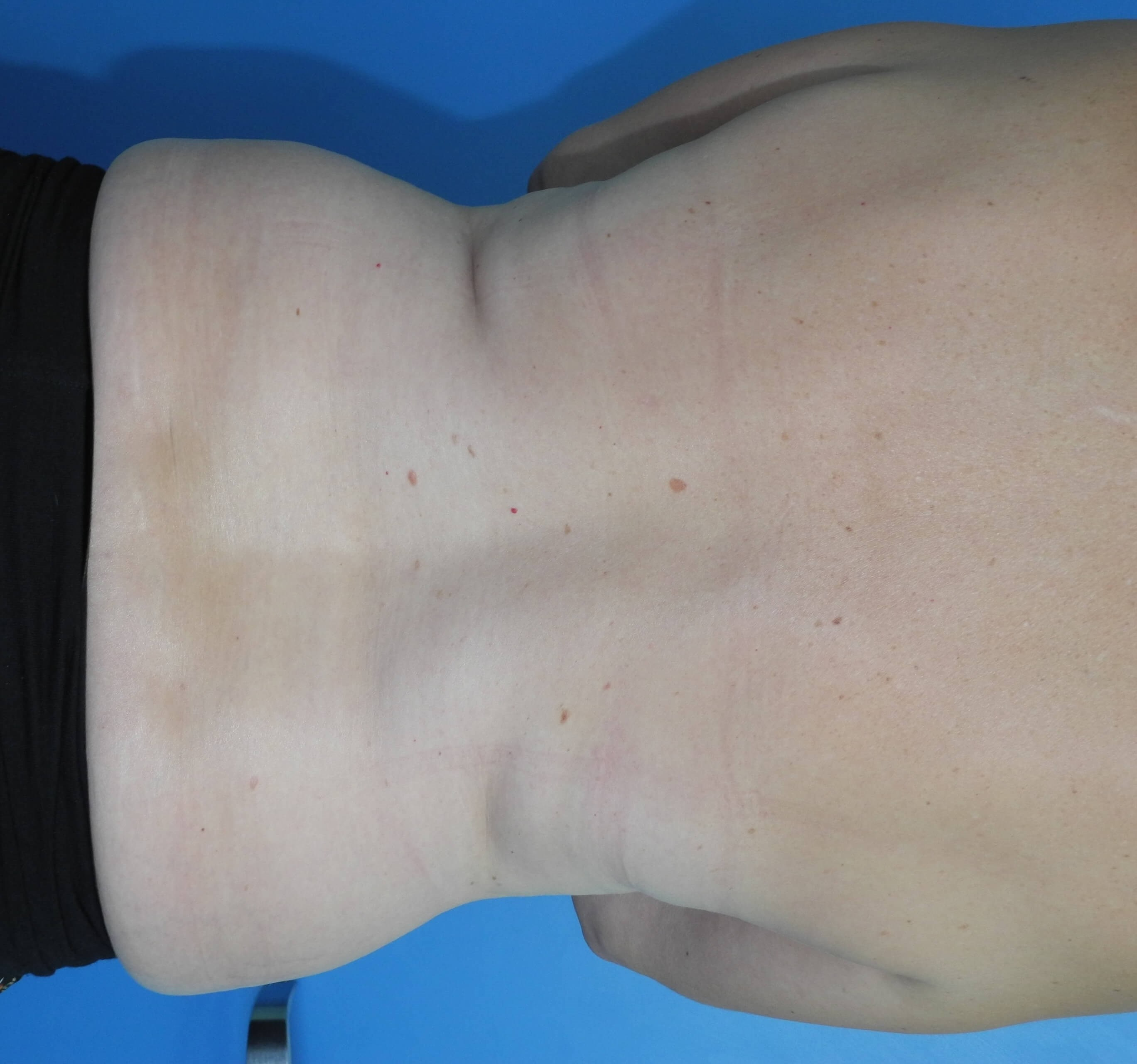 Liposuction of Back, Flanks Before