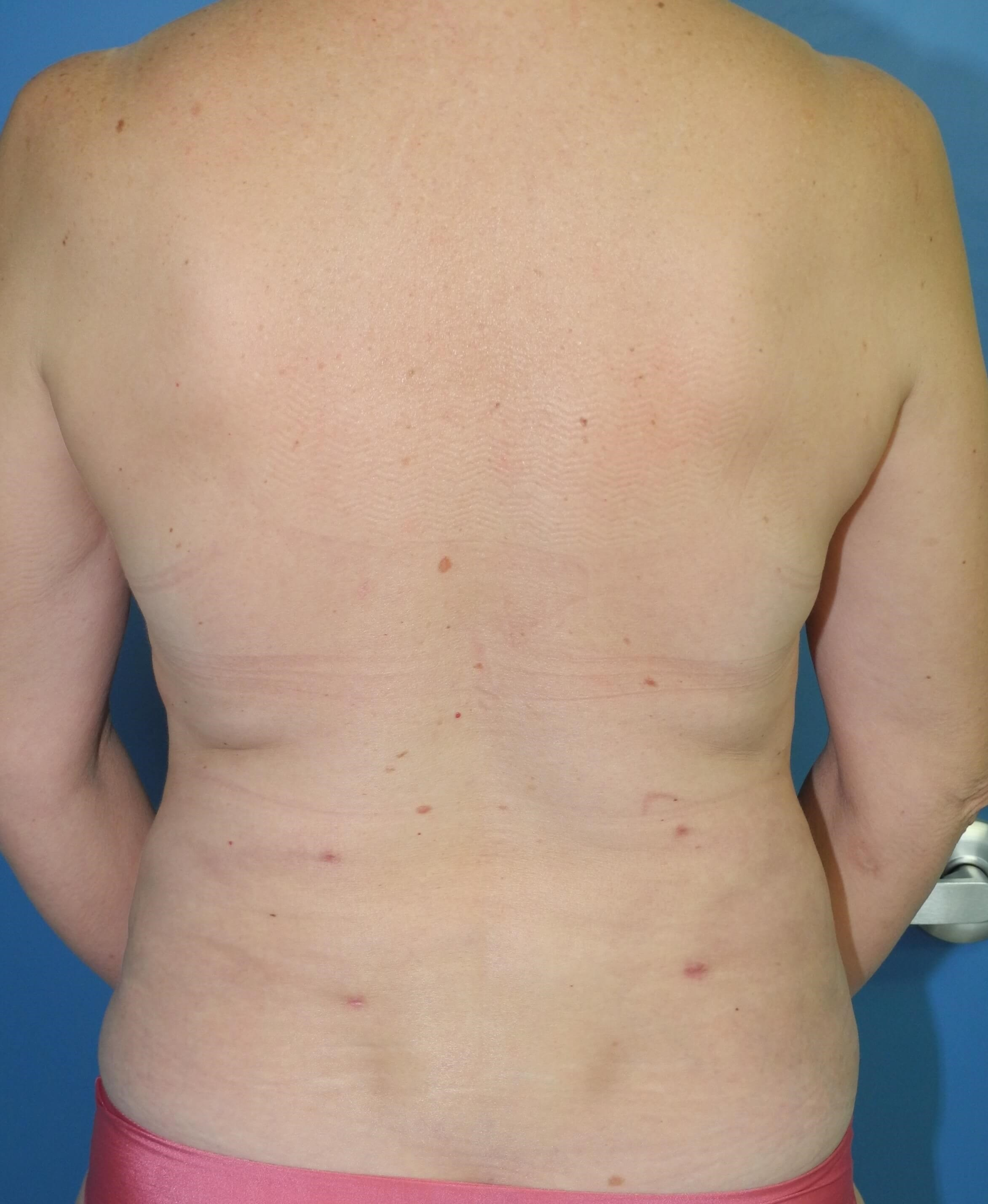 Liposuction of Back, Flanks After