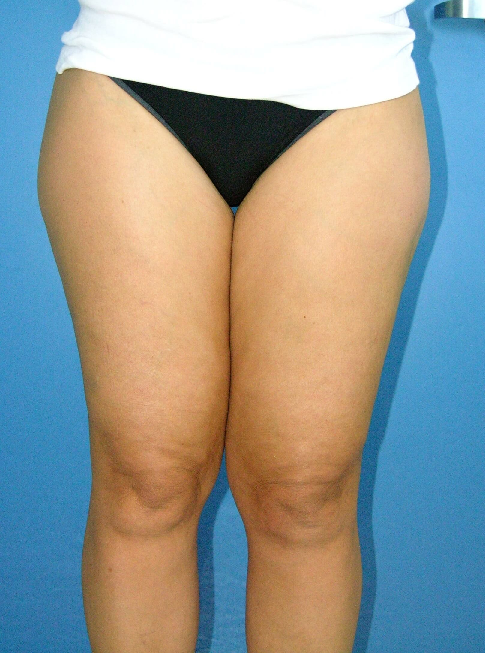 Liposuction of Thighs Before
