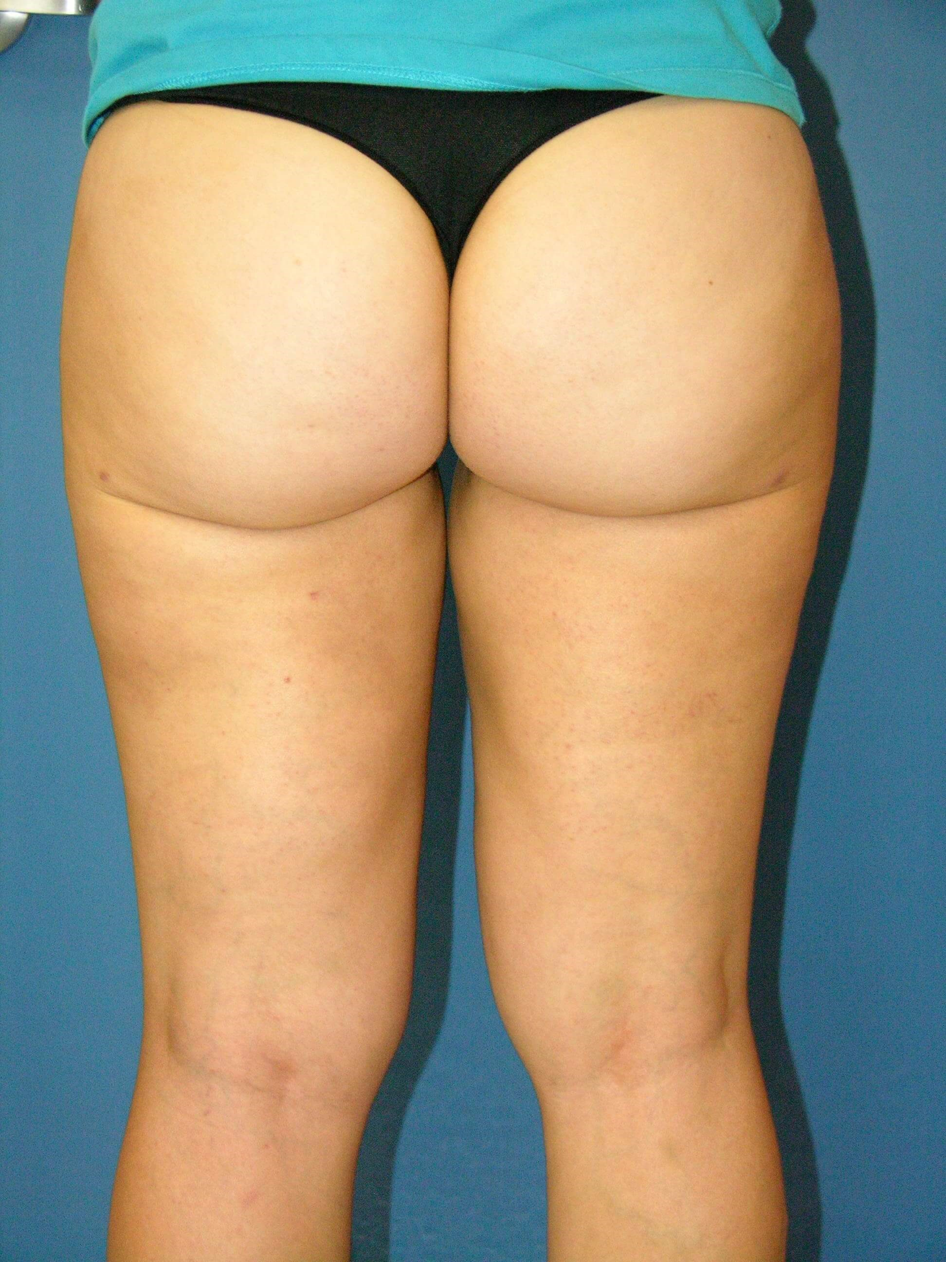 Liposuction of Thighs After