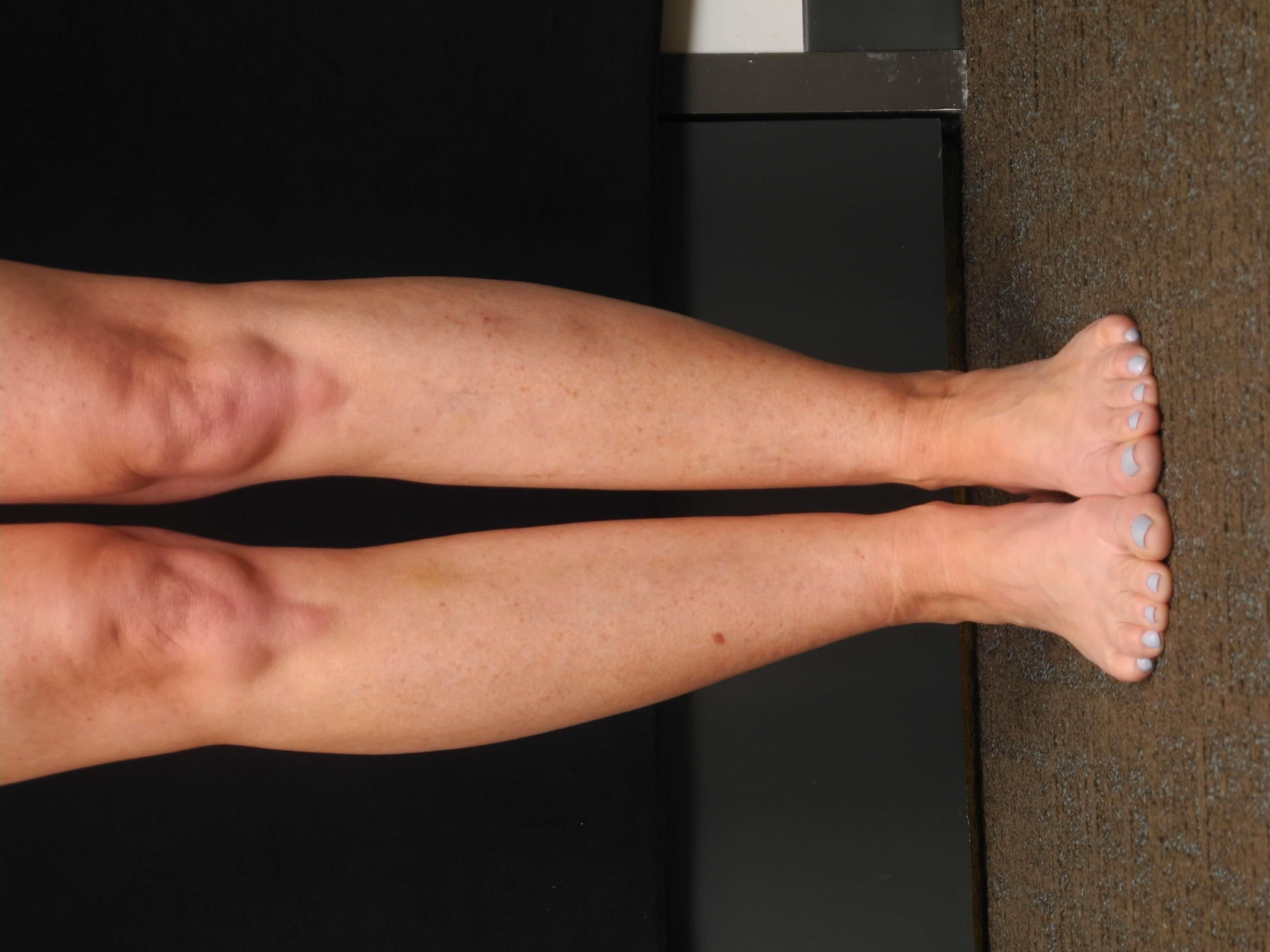 Liposuction of Ankles Before