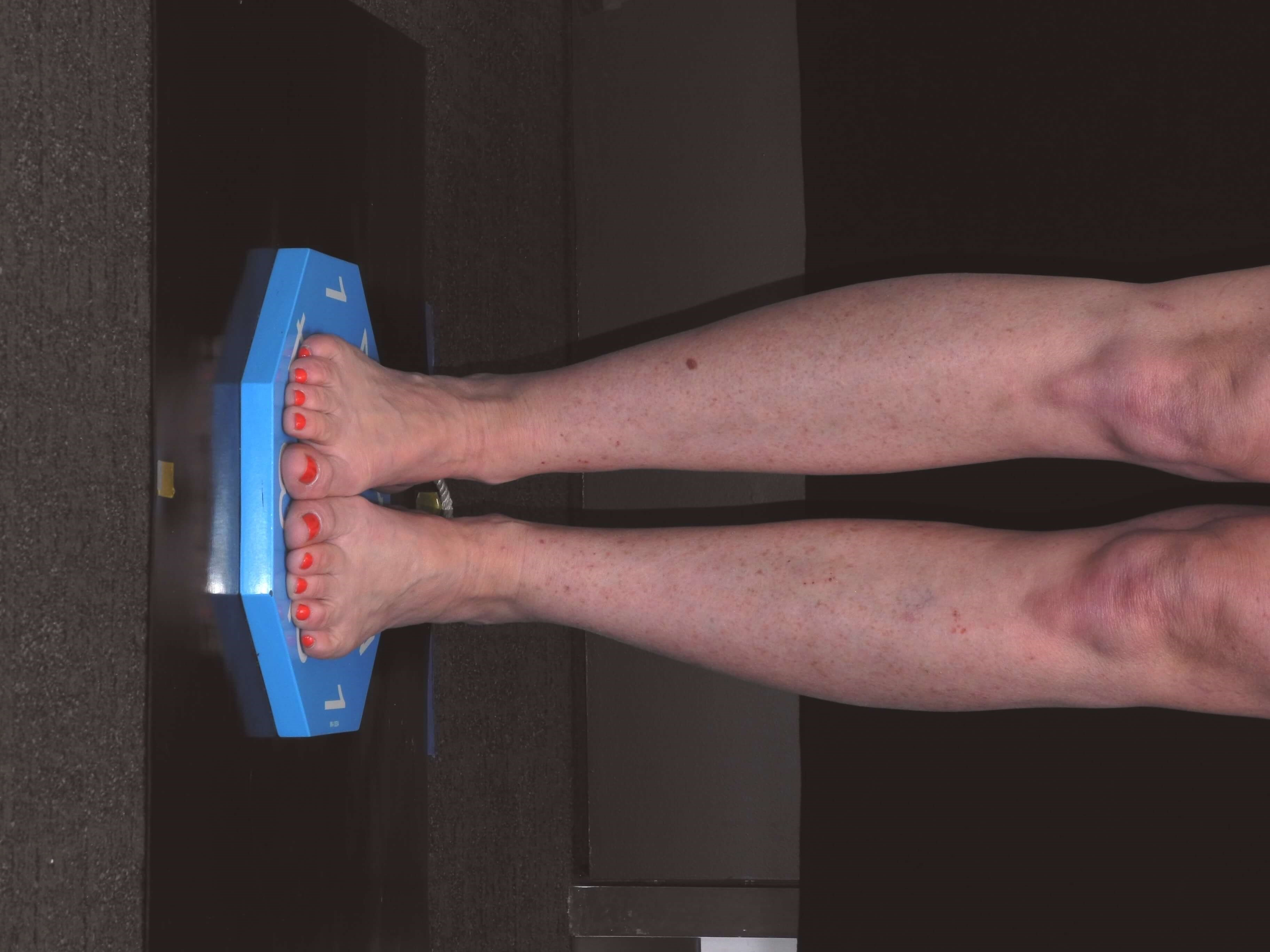 Liposuction of Ankles After