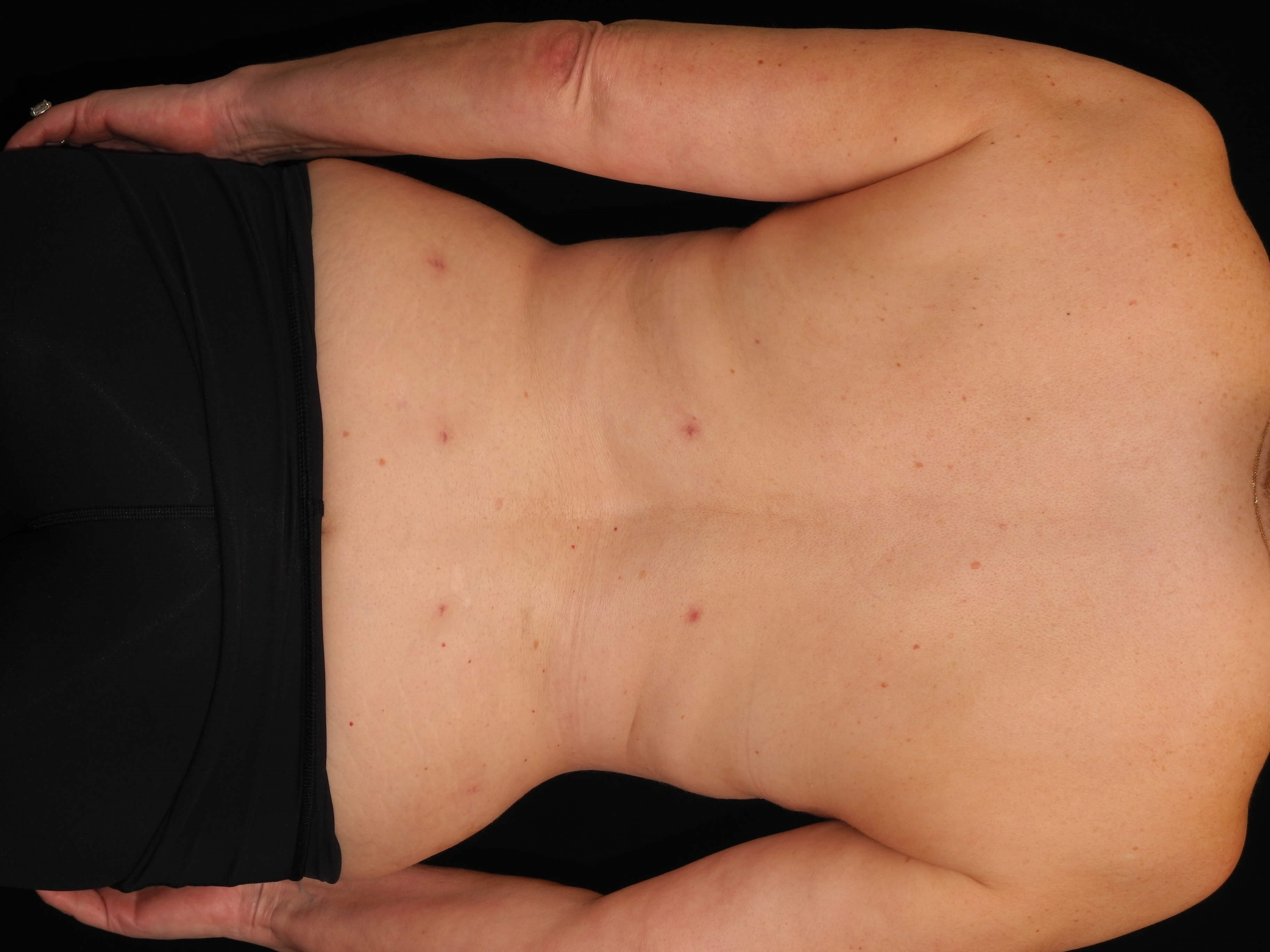 Liposuction of the Back After