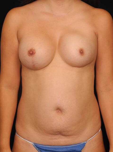 Left Breast DIEP Before