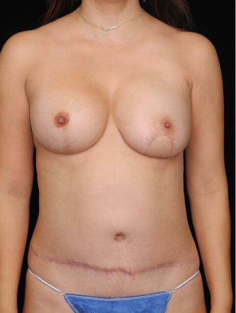 Left Breast DIEP After