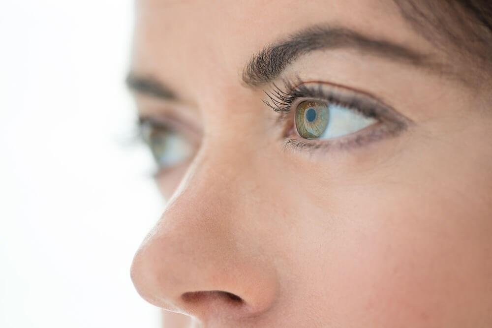 Blepharoplasty eyes