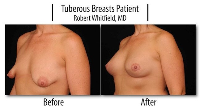 Tuberous Breasts Patient 2