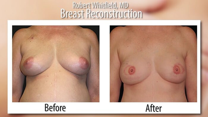 Breast Reconstruction Results